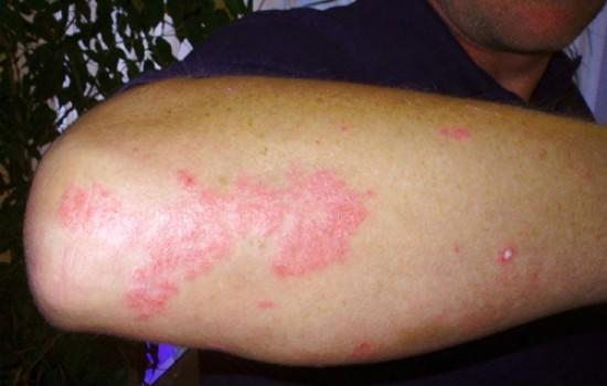 De que no es posible comer cuando al niño atopichesky la dermatitis
